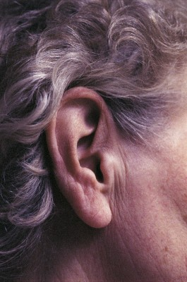 Malignant Otitis Externa (Ear and Skull Infection) in the Elderly