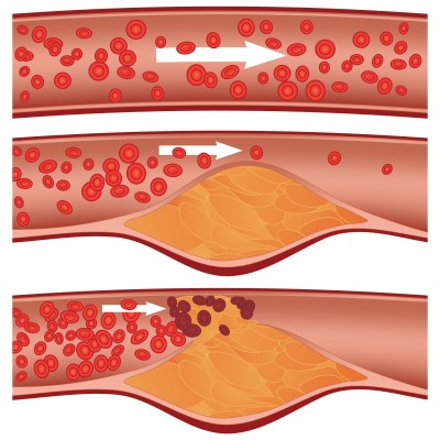 atherosclerosis (hardening arteries) in the elderly, Human Body