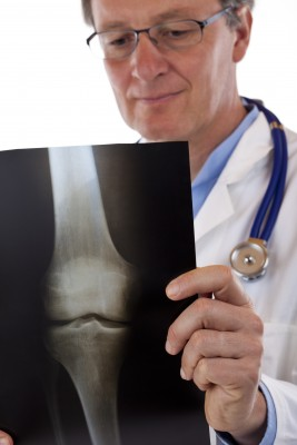 How Osteoporosis is Diagnosed – Symptoms and Tests
