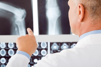 Osteopenia vs Osteoporosis – What Does It Mean?