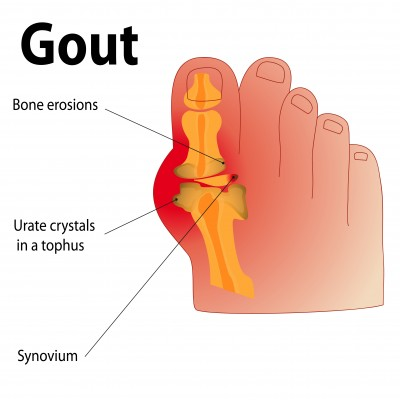 gout diet avoid foods foods that contain high uric acid levels treat gout in thumb