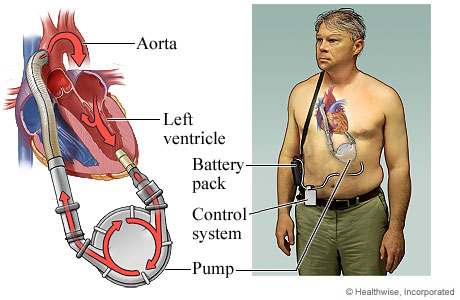 Ventricular Assist Device Supplies Ventricular Assist Device
