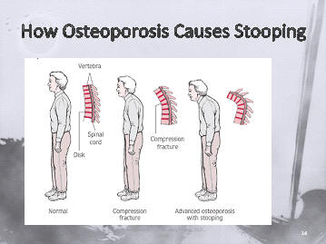 Osteoporosis and Stooping