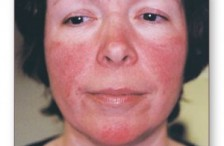 Rosacea in the Elderly