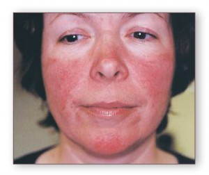 Acne Treatment For Teens