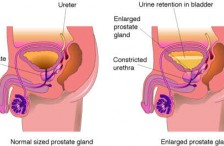 Benign Prostatic Hyperplasia (Enlarged Prostate) in the Elderly